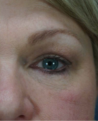 55-64 year old woman treated with Eye Bags Treatment after 1797401