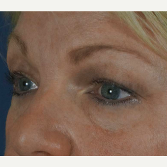 55-64 year old woman treated with Eye Bags Treatment 1797401