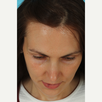 25-34 year old woman treated with Revision Rhinoplasty after 3630190