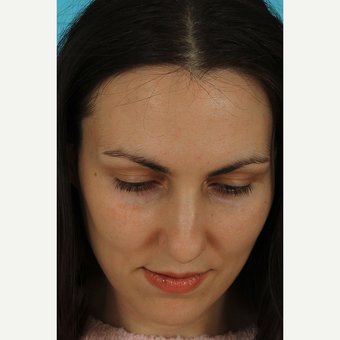 25-34 year old woman treated with Revision Rhinoplasty before 3630190