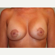 35-44 year old woman treated with Breast Lift after 3338954