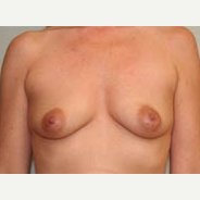 35-44 year old woman treated with Breast Lift before 3338954