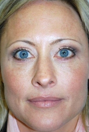 35-44 year old woman treated with Eyelid Surgery after 1561466