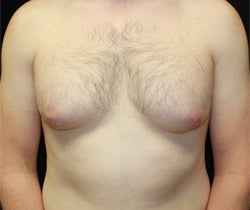 Coolsculpting male chest (unilateral) before 1201370