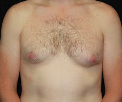 Coolsculpting male chest (unilateral) after 1201370