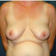 45 year old woman treated with Breast Lift before 3666118