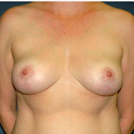 45 year old woman treated with Breast Lift after 3666118
