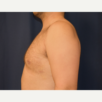 25-34 year old man treated with Male Breast Reduction after 3788321