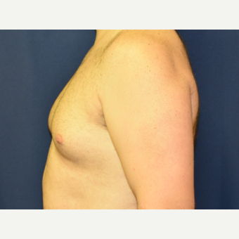 25-34 year old man treated with Male Breast Reduction before 3788321
