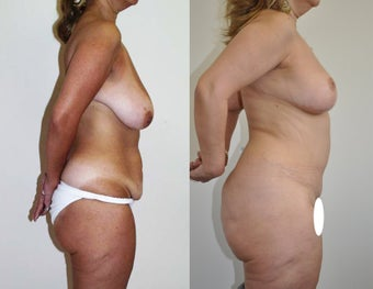 Mommy makeover in a 48 year-old female after 957639