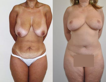 Mommy makeover in a 48 year-old female before 957639