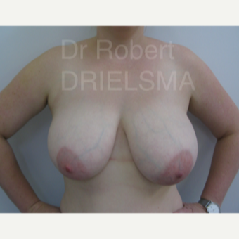 34 year old woman treated with vertical short scar (lollipop) Breast Reduction before 3302669