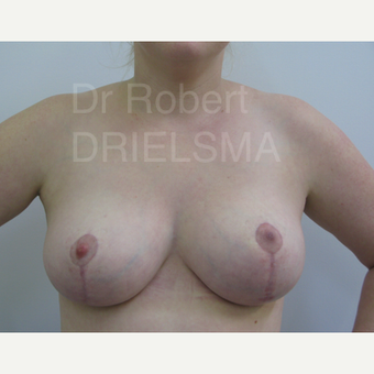 34 year old woman treated with vertical short scar (lollipop) Breast Reduction after 3302669