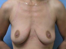 Breast lift before 699533
