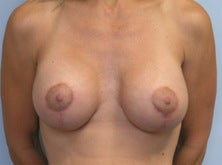 Breast lift after 699533