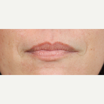 35-44 year old woman treated with Lip Augmentation before 3690740