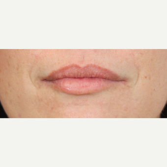 35-44 year old woman treated with Lip Augmentation after 3690740