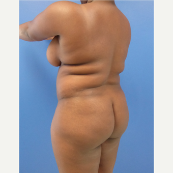 35-44 year old woman treated with Brazilian Butt Lift before 3344831
