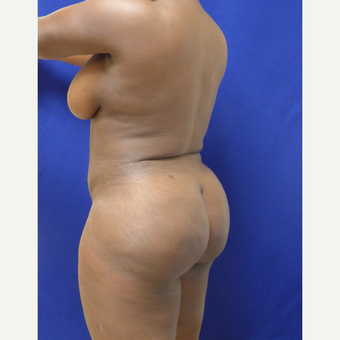 35-44 year old woman treated with Brazilian Butt Lift after 3344831