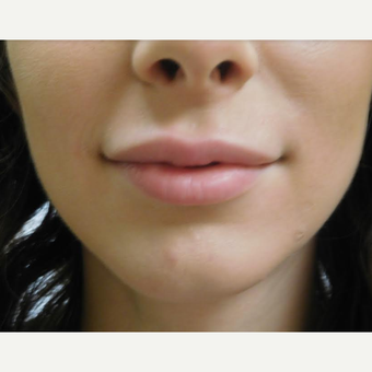25-34 year old woman treated with Restylane Lyft before 3710828