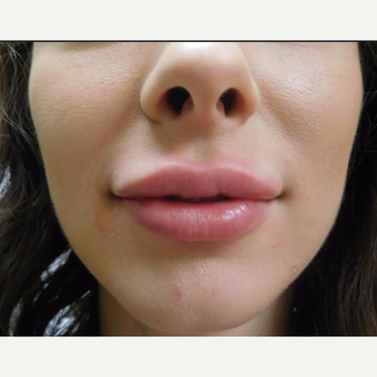 25-34 year old woman treated with Restylane Lyft after 3710828