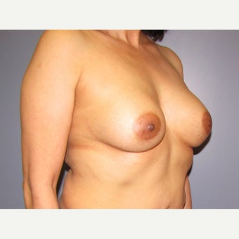 50 year old woman treated with Breast Implant Revision before 2625979