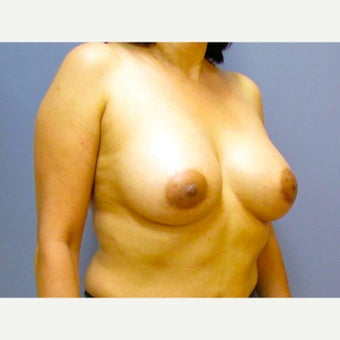 50 year old woman treated with Breast Implant Revision after 2625979