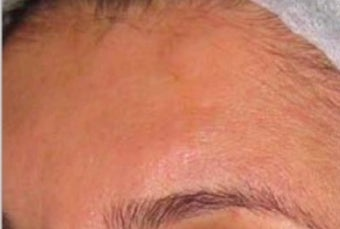 25-34 year old woman treated with Scar Removal