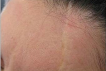25-34 year old woman treated with Scar Removal before 1789347