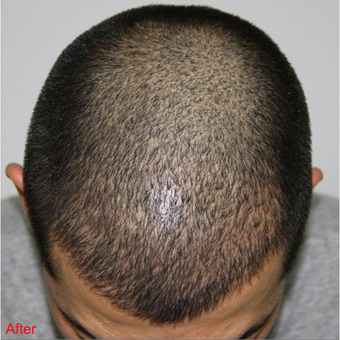 FUE Hair Transplant  after 2906553