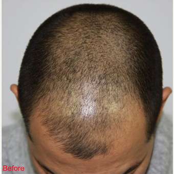 FUE Hair Transplant  before 2906553