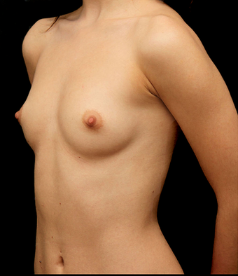 25-34 year old woman treated with Breast Augmentation before 3735144