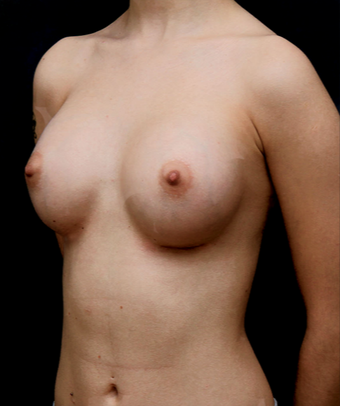 25-34 year old woman treated with Breast Augmentation after 3735144
