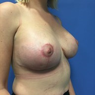 Augmentation Mastopexy after 3729139
