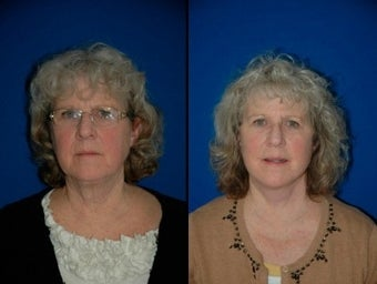 58 year old woman treated with Facelift before 3004834