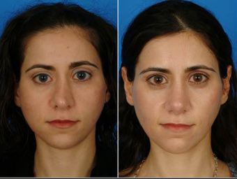 Nose Surgery (Revision Rhinoplasty) before 333094
