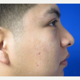 Rhinoplasty after 2993707