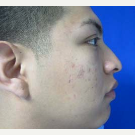 Rhinoplasty before 2993707