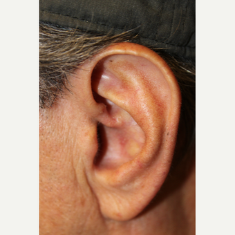 65-74 year old man treated with Ear Skin Cancer Removal. after 3140007