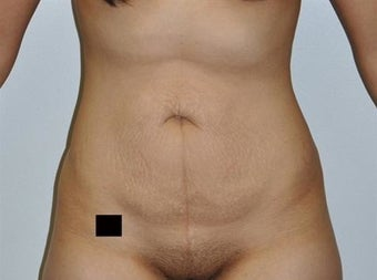 25-34 year old woman treated with Tummy Tuck before 1820637