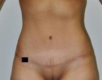 25-34 year old woman treated with Tummy Tuck after 1820637