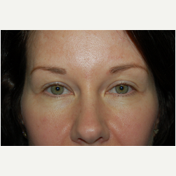 Eyelid Surgery before 3720151