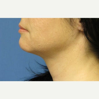 45-54 year old woman treated with Ultherapy 1571787
