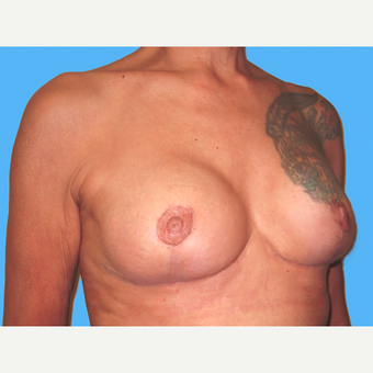 Breast Implant Removal after 3809788