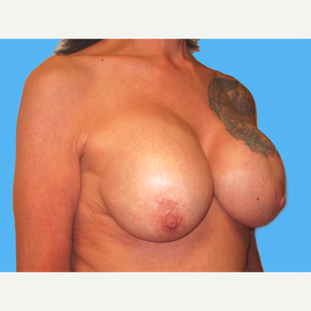Breast Implant Removal before 3809788
