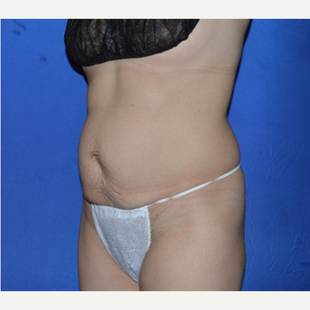 45-54 year old woman treated with No-Drain Tummy Tuck before 3655845