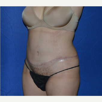 45-54 year old woman treated with No-Drain Tummy Tuck after 3655845