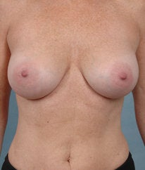 Breast Augmentation after 476666