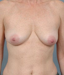 Breast Augmentation before 476666