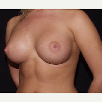 18-24 year old woman treated with Breast Implants after 3602781